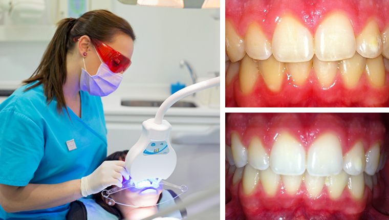 blanquamiento-dental_estetica-dental_urbandental