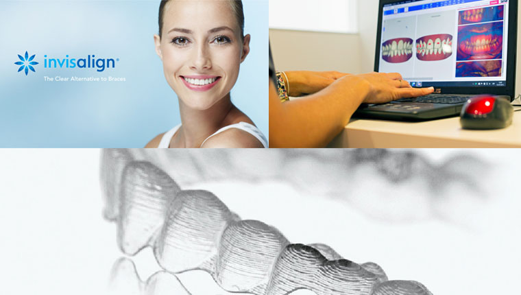 invisalign_ortodoncia_urban-dental