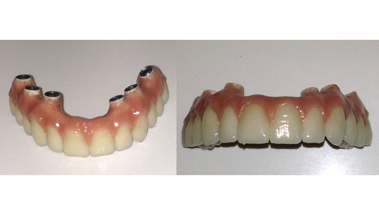 protesis-dental-hibridas_urbandental