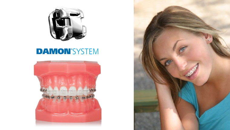 sistema-damon_ortodoncia_urban-dental